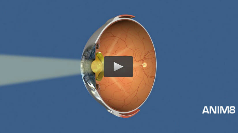 ophthalmology animations for websites