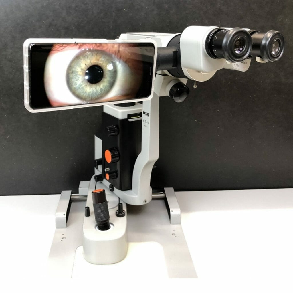 microrec ophthalmic imaging